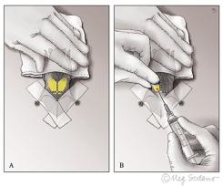 Bat Biopsy (Adobe Photoshop)