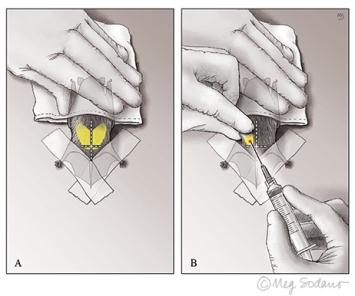 bat biopsy